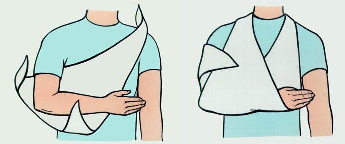 Первая помощь и восстановление после вывиха локтевого сустава