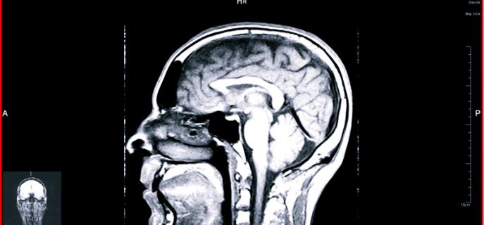 Лучшие методы обследования головы
