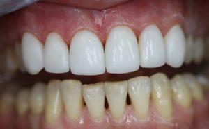 Как делают виниры на зубы в стоматологии