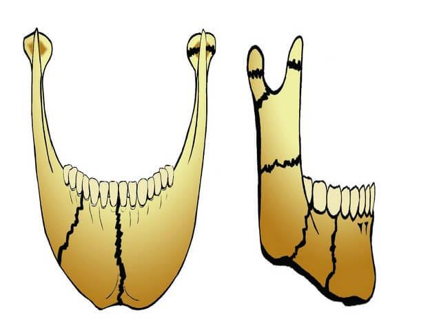 Закрытые переломы челюсти