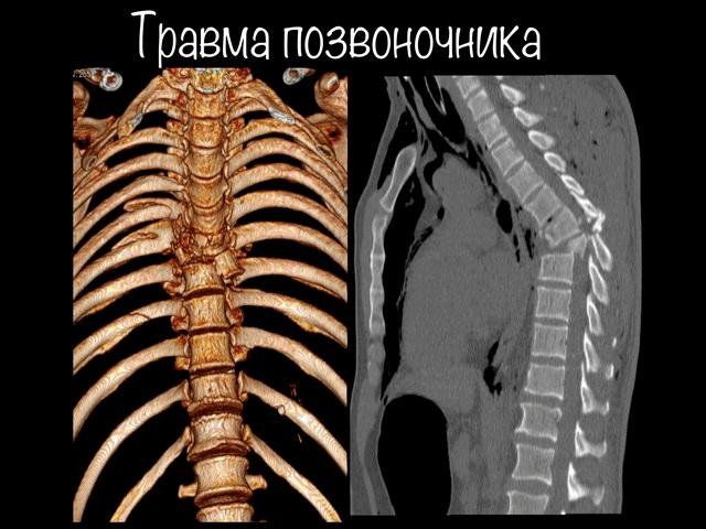 Снимок сильного перелома спины