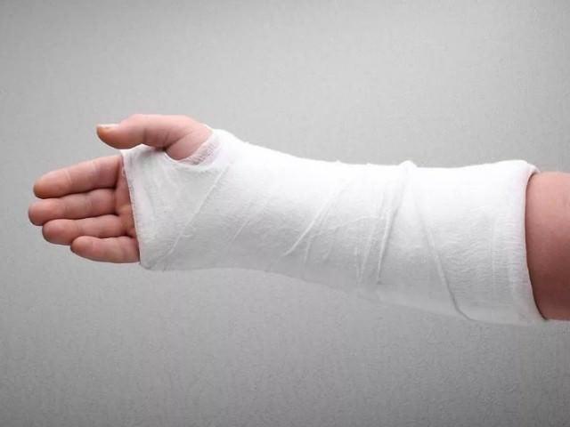Травмированная рука