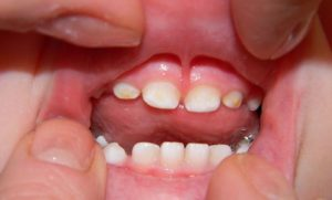 лечение серого налета на зубах