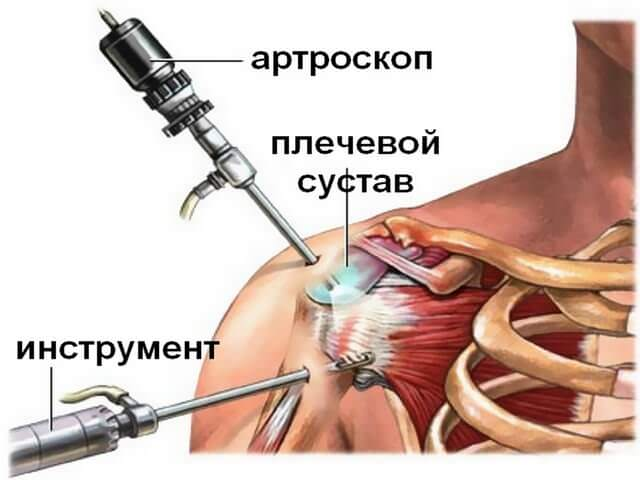 Схема проведения артроскопии плечевого сустава