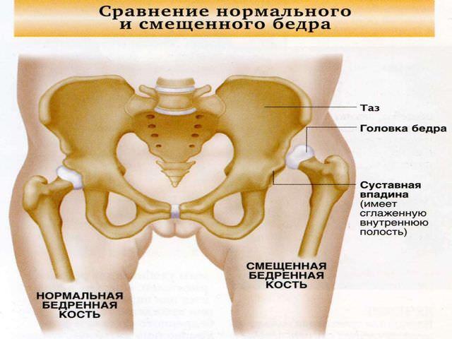 Нормальная и смещенная бедренная кость