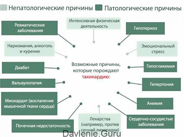 Тахикардия причины