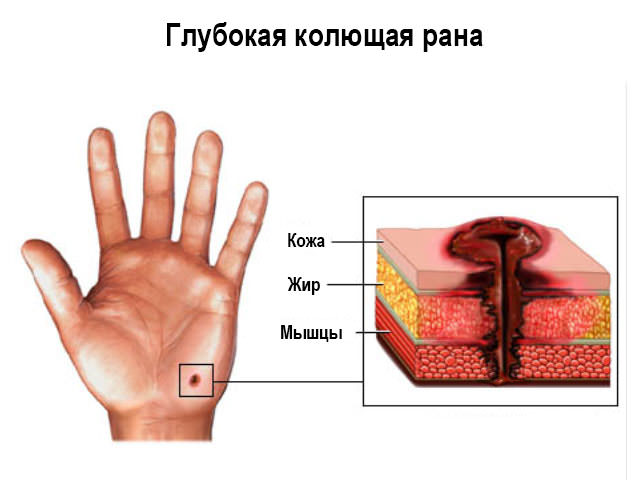Глубокий укол шилом