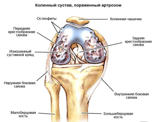 коленный сустав пораженный артрозом