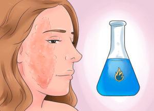 Химические ожоги кожи