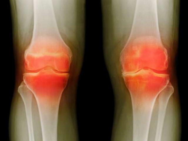 Снимок рентгеном