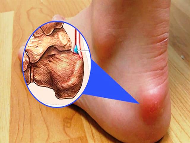 Причины развития бурсита пятки и действенные способы лечения