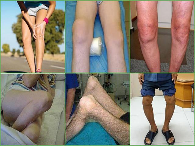Что такое гонартроз коленных суставов