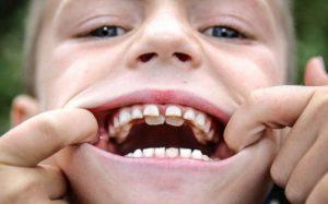 Если зубы не растут