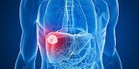 Что такое гемангиома печени и лечение в домашних условиях