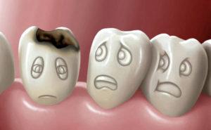 лечение кариеса молочных зубов у детей раннего возраста