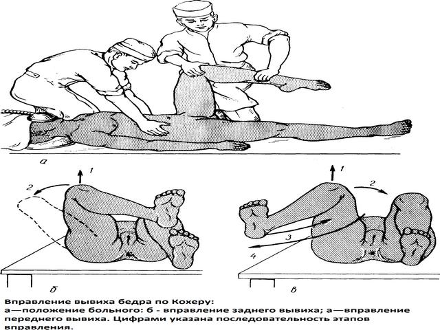 Вправление кости методом Кохера