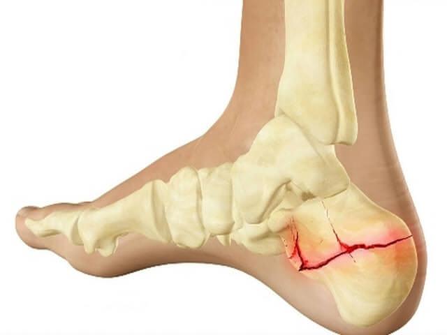 Повреждение кости в стопе
