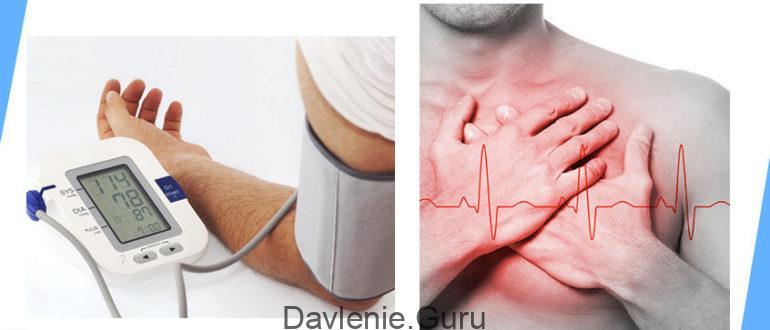 Артериальная тахикардия