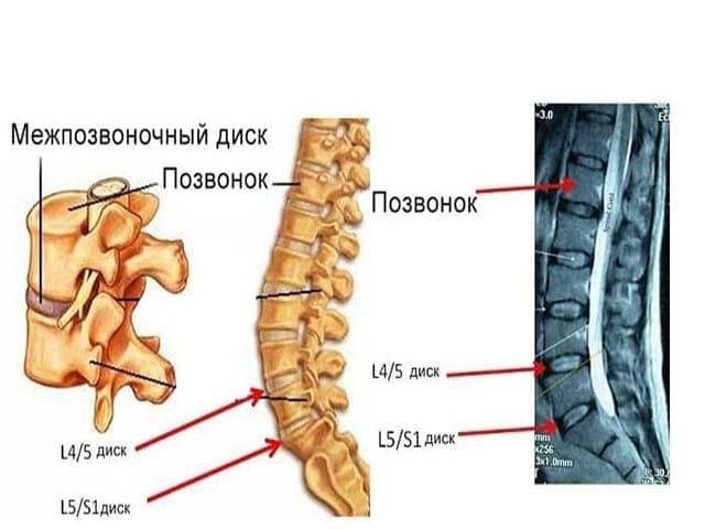 Как лечить грыжу диска L5 S1, какие упражнения делать