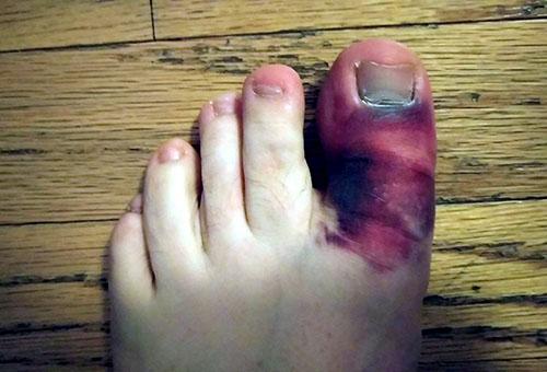 Что делать при переломе пальца на ноге