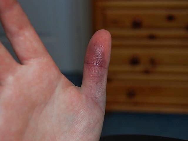 Закрытое повреждение тканей руки