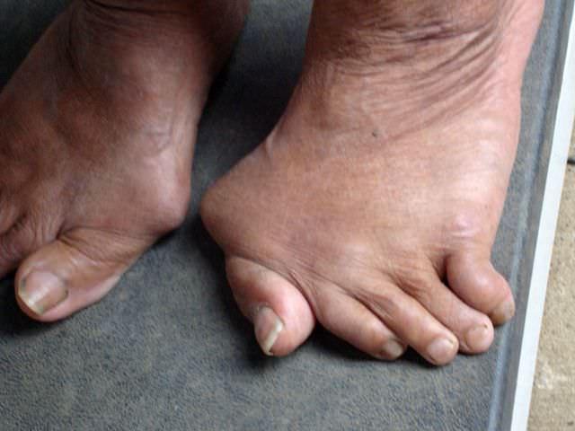 деформация суставов стопы