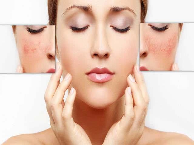 Небольшие повреждения кожи после косметических процедур