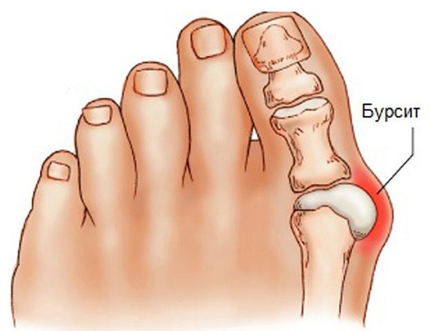 Схематический рисунок ноги