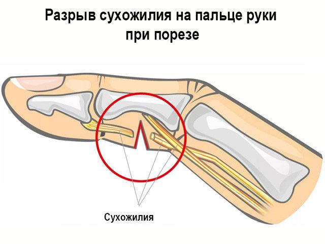 Пример травмирования