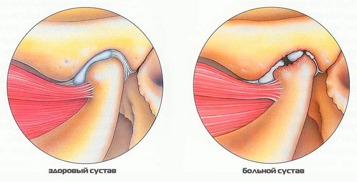 Симптомы и лечение вывиха челюсти