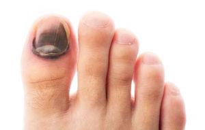 Что делать при ушибе ногтя на руке или ноге