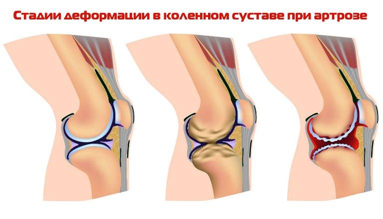 Деформации при артрозе колена