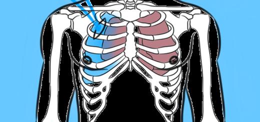 Симптомы и лечение перелома ребер