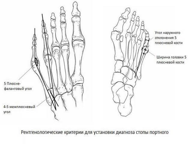 Кости пальцев