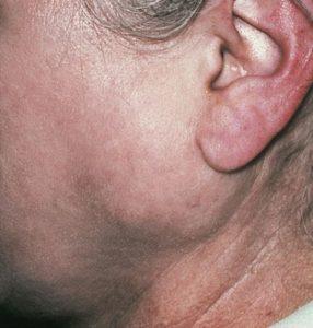 воспаления подчелюстной слюнной железы