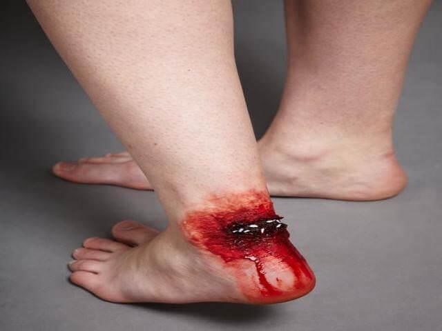 Открытая рана