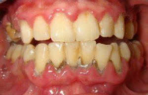 отходит десна от зуба