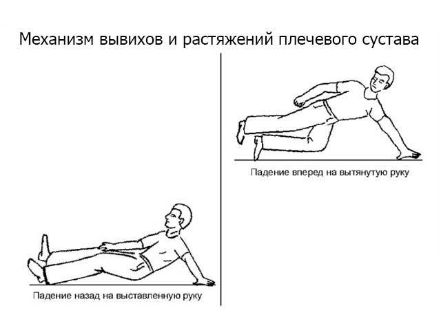 Механизм растяжение плеча