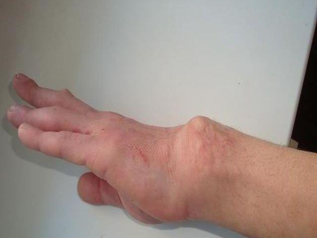 Нарушение целостности кости руки со смещением