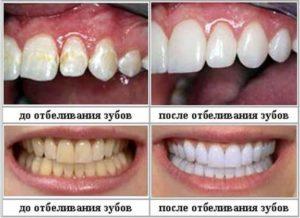 Как проводится отбеливание зубов перекисью водорода