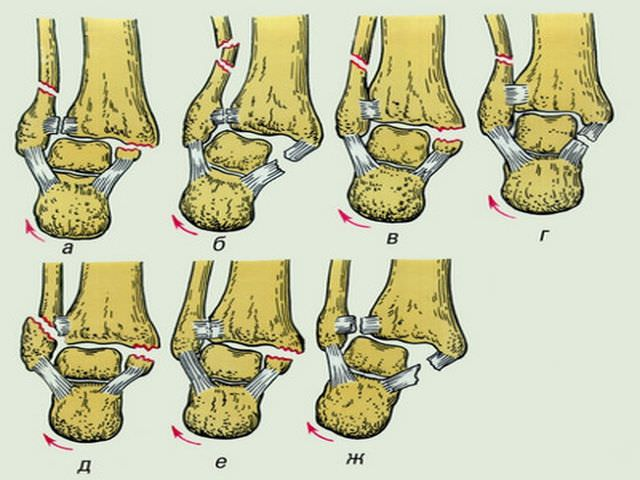 Повреждение голени на схеме