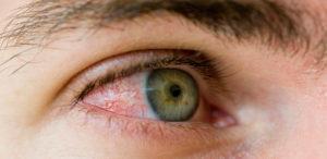 Перелом орбиты глаза