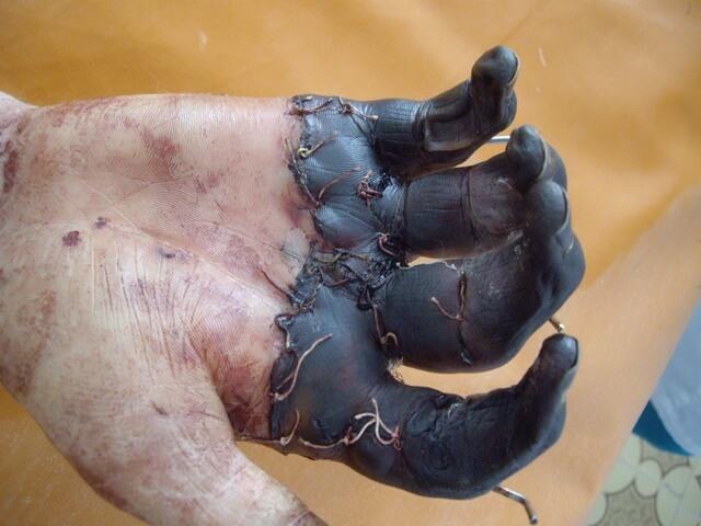 Некроз кожных тканей
