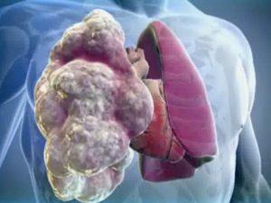 лечение экзогенного аллергического альвеолита