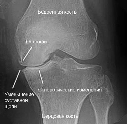 Остеофиты и склероз колена