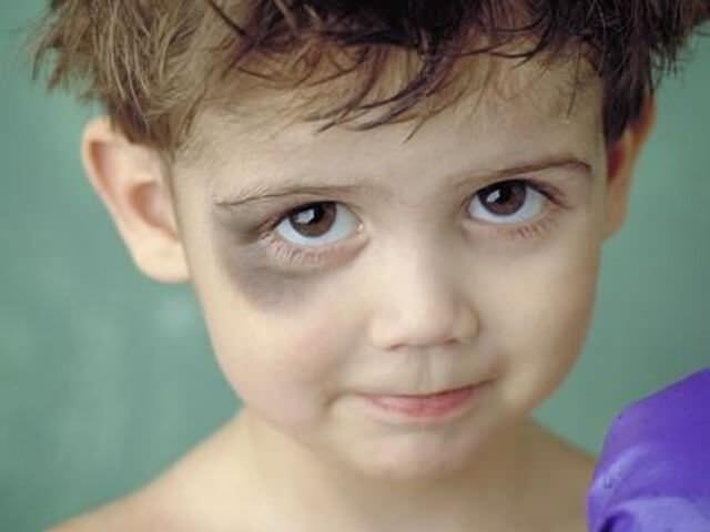 Синяк под глазом у ребенка