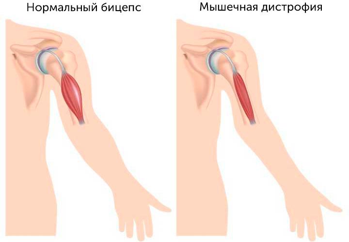 Мышечная дистрофия