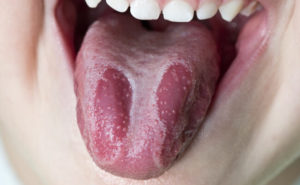 Основные симптомы и лечение десквамативного глоссита