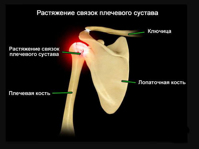 Растяжение плеча
