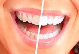 Как можно очистить зубы от желтого налета в домашних условиях